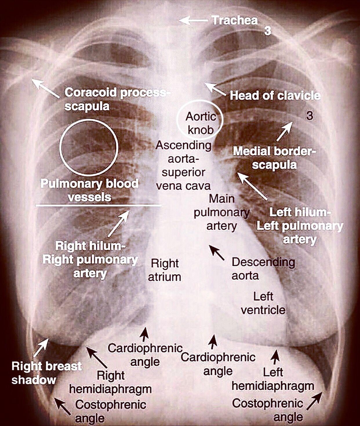 Such a great one for chest xray interpretation #nursingschool #nclex #nursingstu… – wanderlust