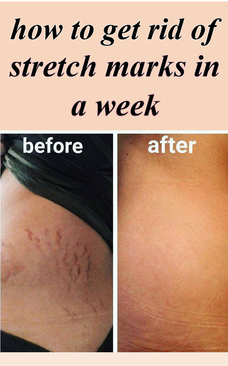 HOW TO GET RID OF STRETCH MARKS IN A WEEK