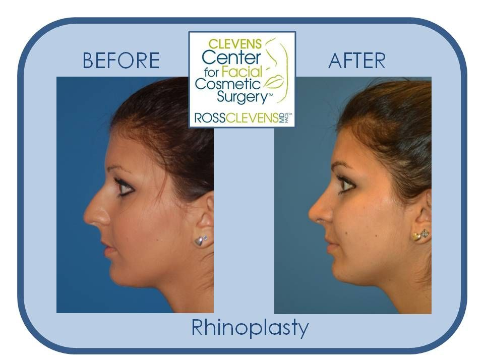 Nose Job #Rhinoplasty By Facial Plastic Surgeon Ross Clevens, MD. Plastic Surgery Before And