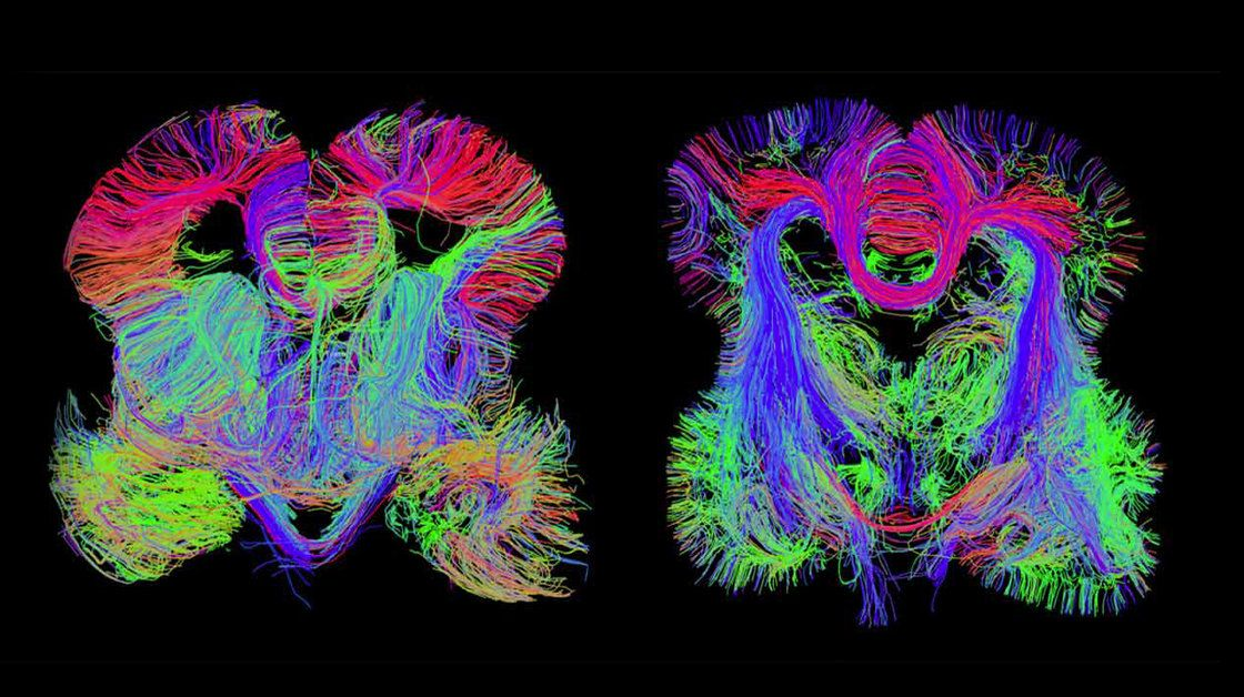 Fetal Brain Wiring - Illustration Of Wiring Diagram •