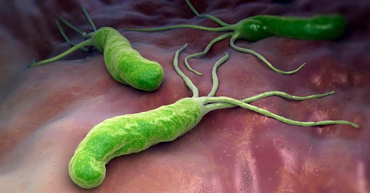 Helicobacter pylori perdida de peso