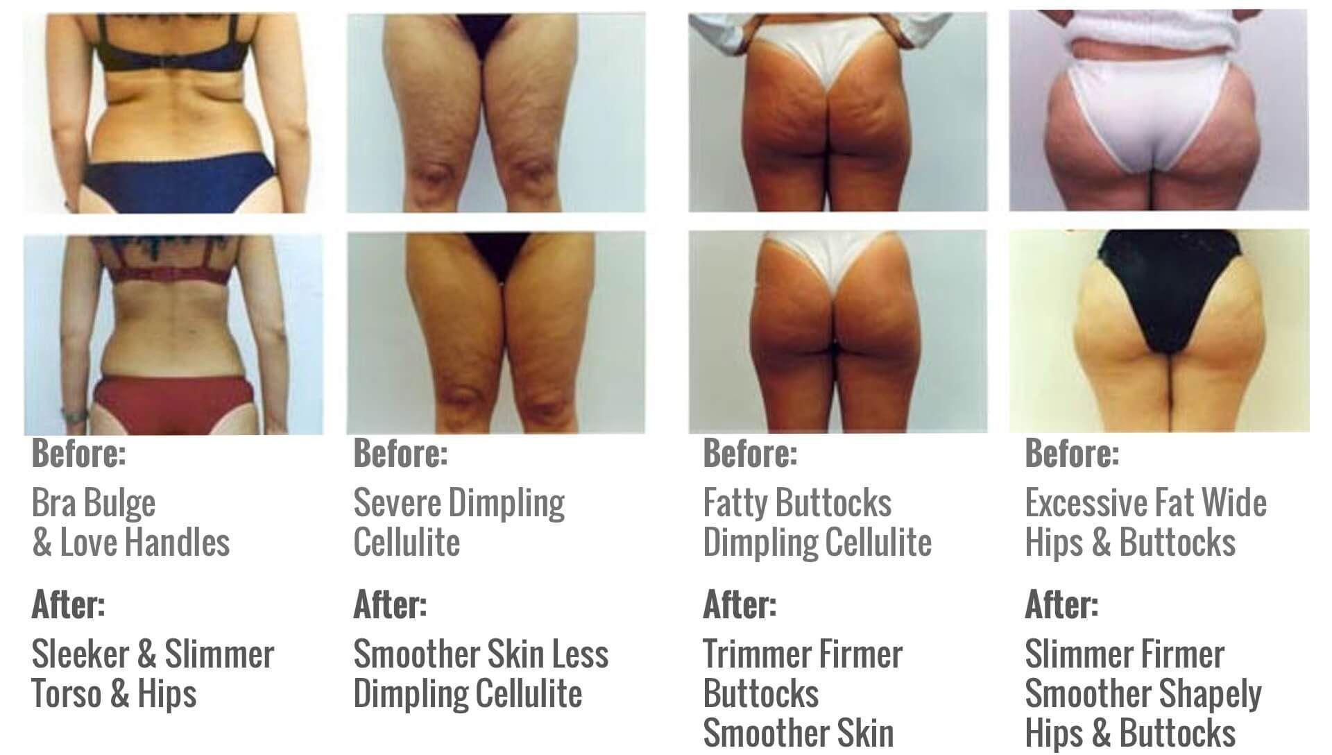 Mesotherapy Lipodissolve Body Sculpting Cellulite Scar Tissue