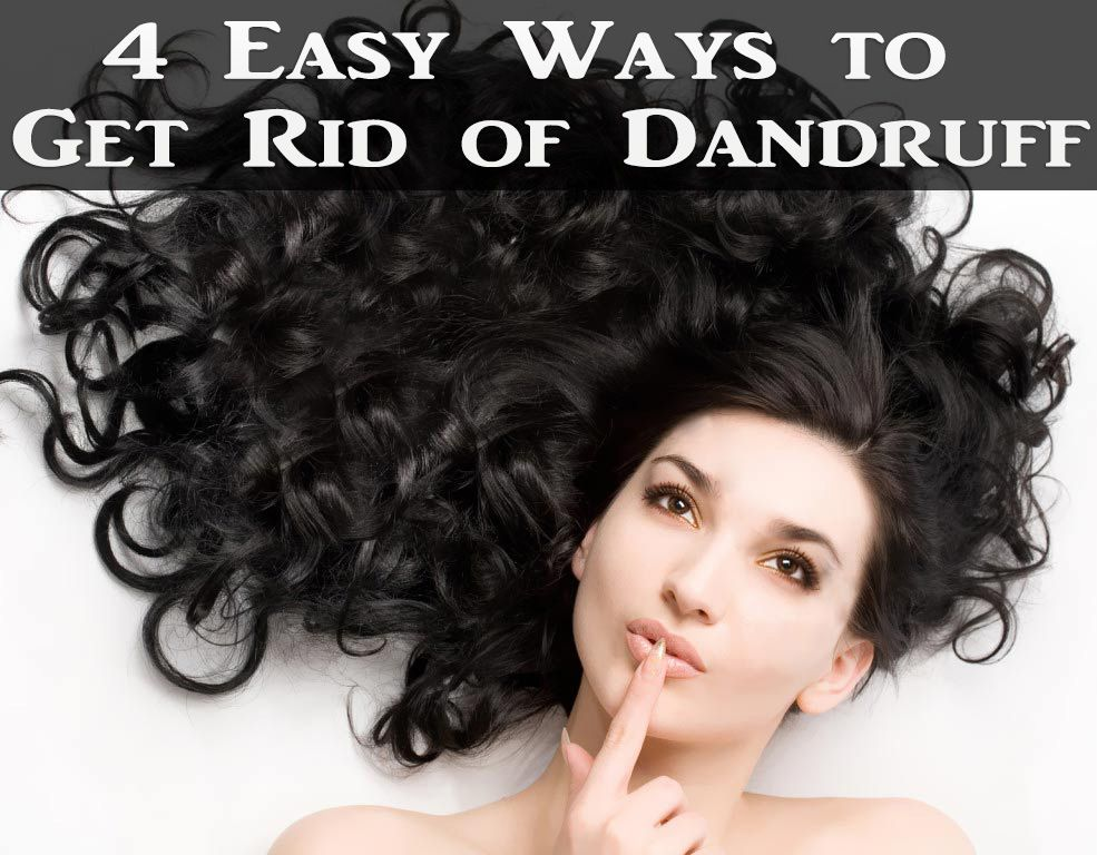 4 Easy Ways to Get Rid of Dandruff Hair growth treatment