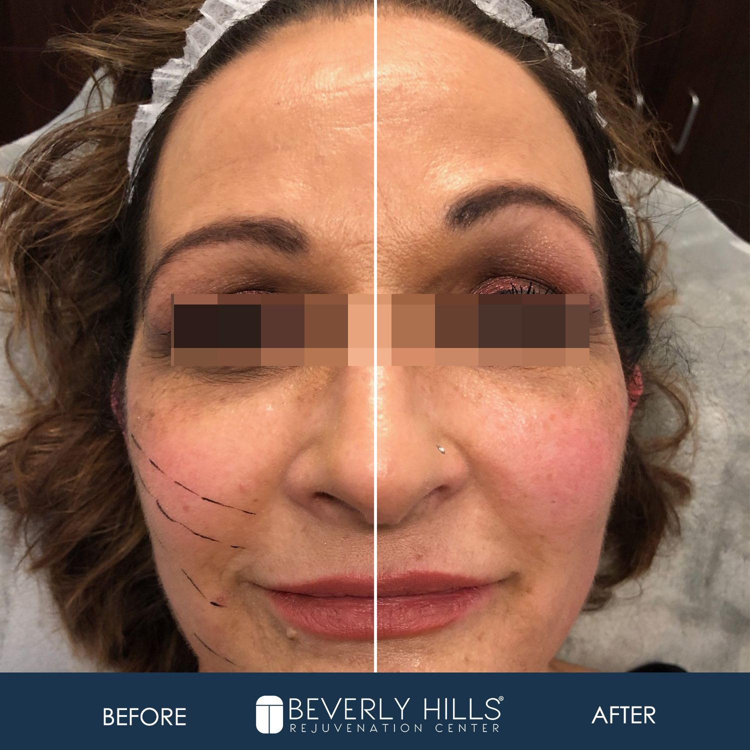 Chino Hills Medical Spa Ca Beverly Hills Rejuvenation Center Non Surgical Facelift Facelift Chino Hills