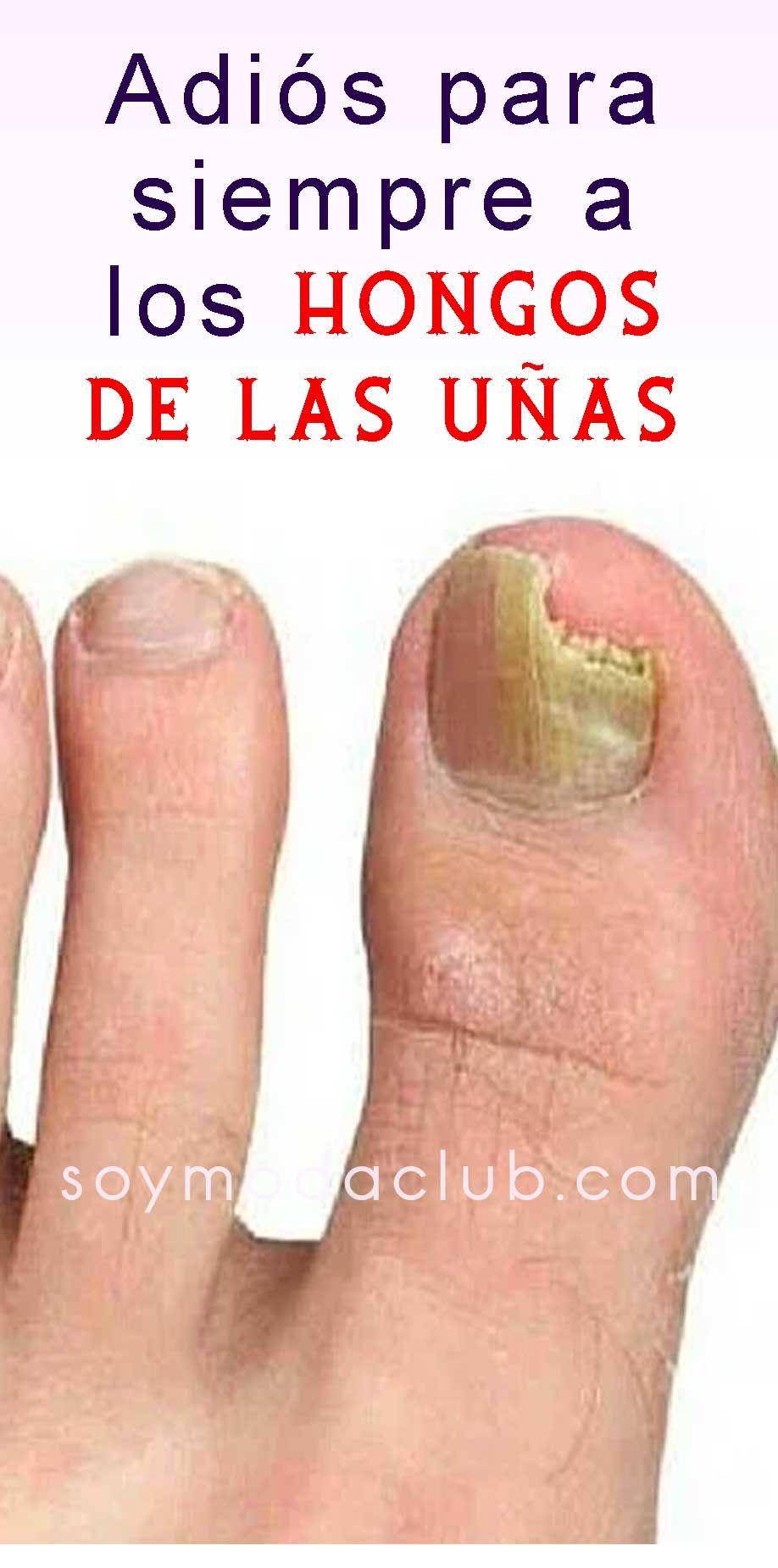 Como adelgazar unas de los pies