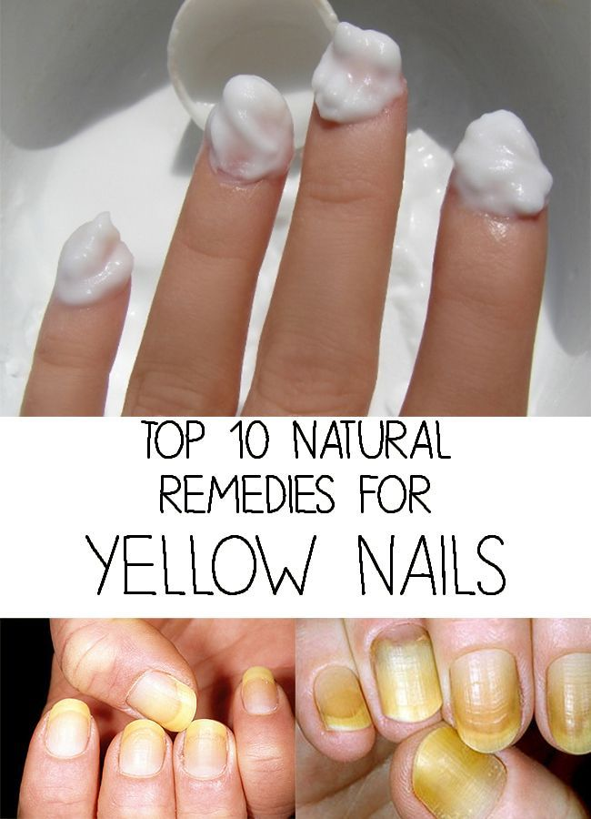Forget about yellow nails! Yellow nails are an affection often ...