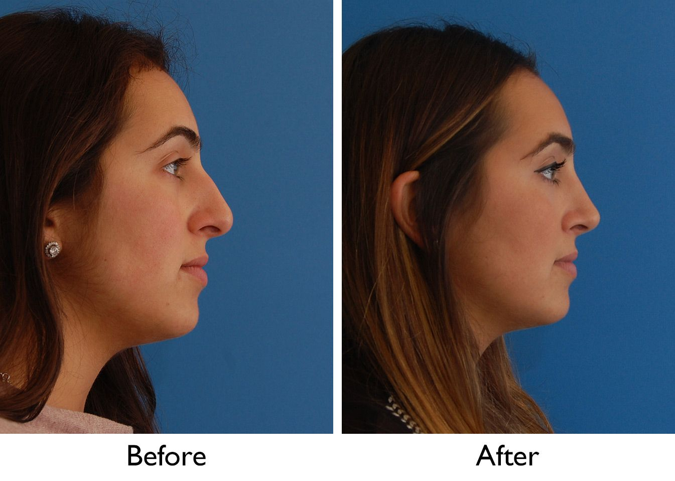 Image result for nose job long nostrils | rhinoplasty & chin