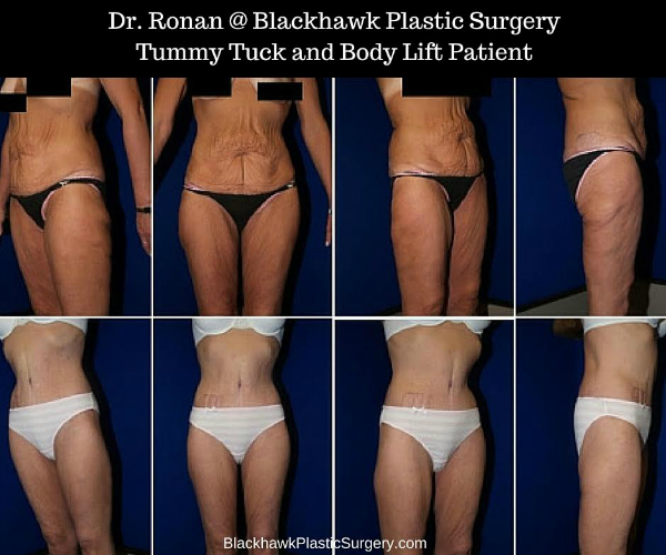 Body Contouring Surgery Before And After Pictures After Extreme