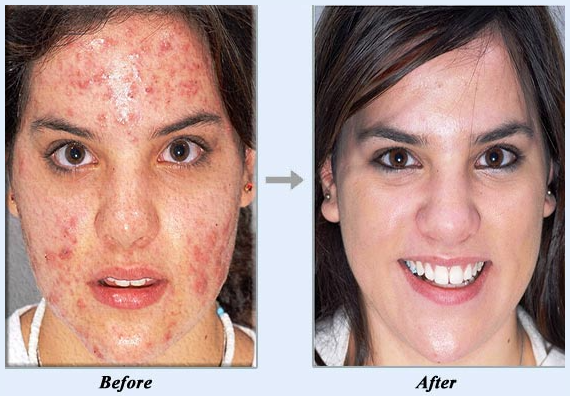 Image result for acne no more