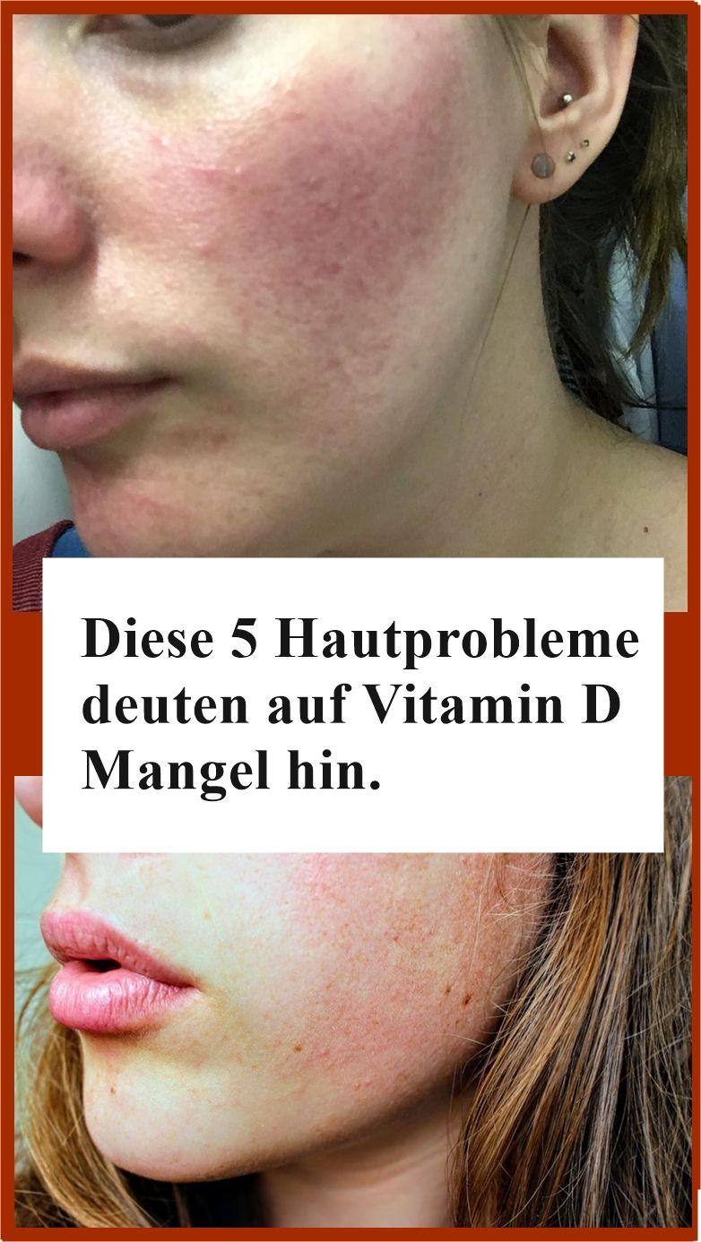 Diese 5 Hautprobleme Deuten Auf Vitamin D Mangel Hin Njuskam Beauty Hacks Beauty Vitamin D