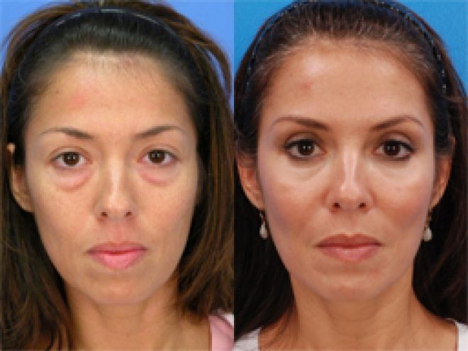 Dr Shafer, a NYC double board certified plastic surgeon ...