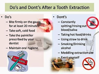 Do S And Don Ts After Tooth Extraction Tooth Extraction Aftercare Tooth Extraction Dental Extraction