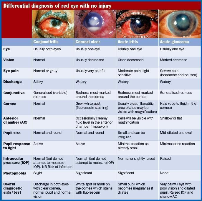 Diffeial Diagnosis Of Red Eye