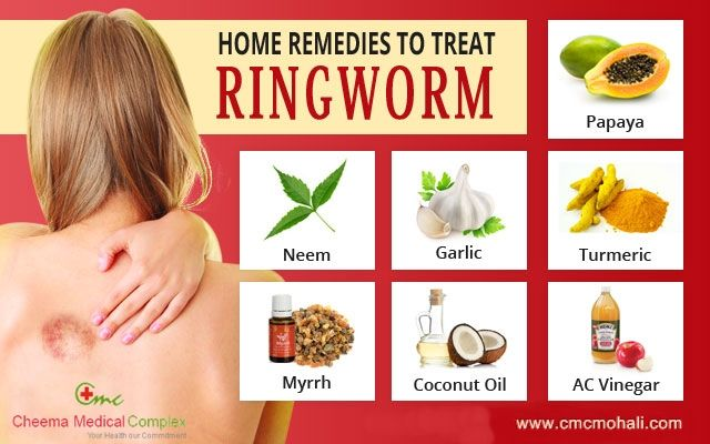 Home Remedies To Treat Ringworm Heathtips Home