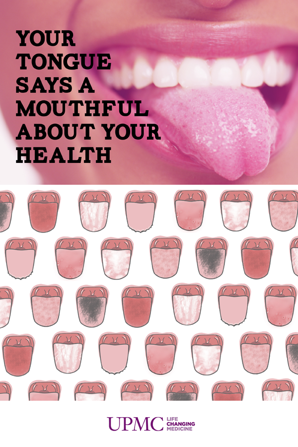 What Does Your Tongue Say About Your Health Infogr