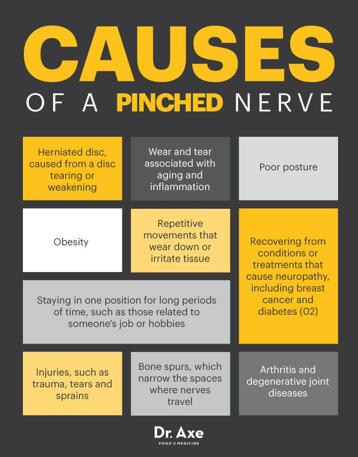 Natural Ways To Help A Pinched Nerve