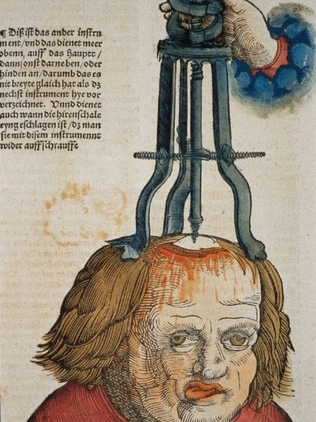 Neurosurgery Collect Medical Anitques Medieval Art Vintage Medical Medieval
