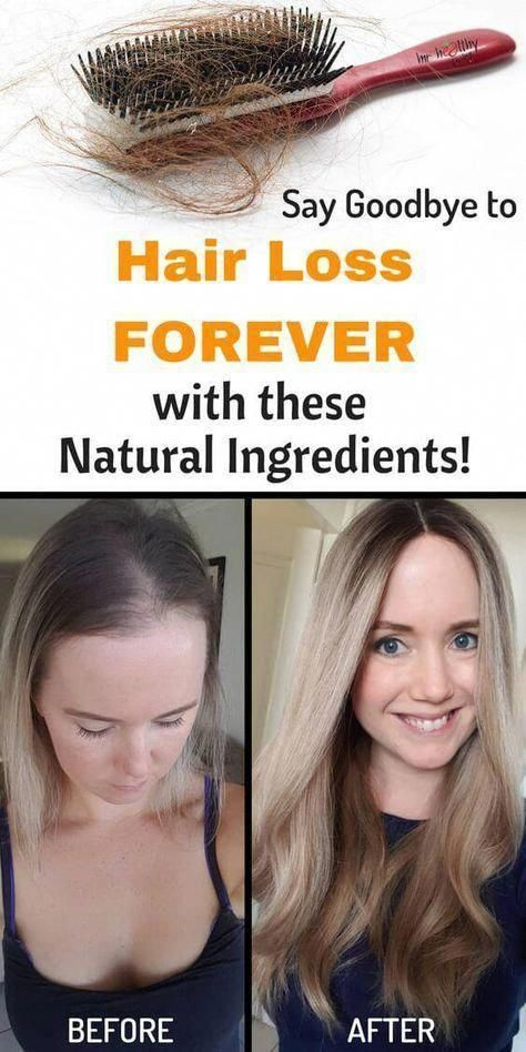 What You Should Do About Hair Loss and Brittle Nai