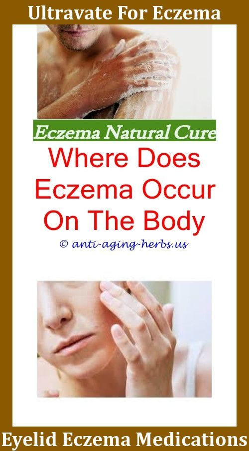 How To Get Rid Of Skin Discoloration From Eczema ...