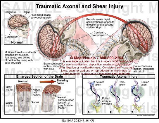 diffuse axonal injury - Google Search | Injury, Brain ...
