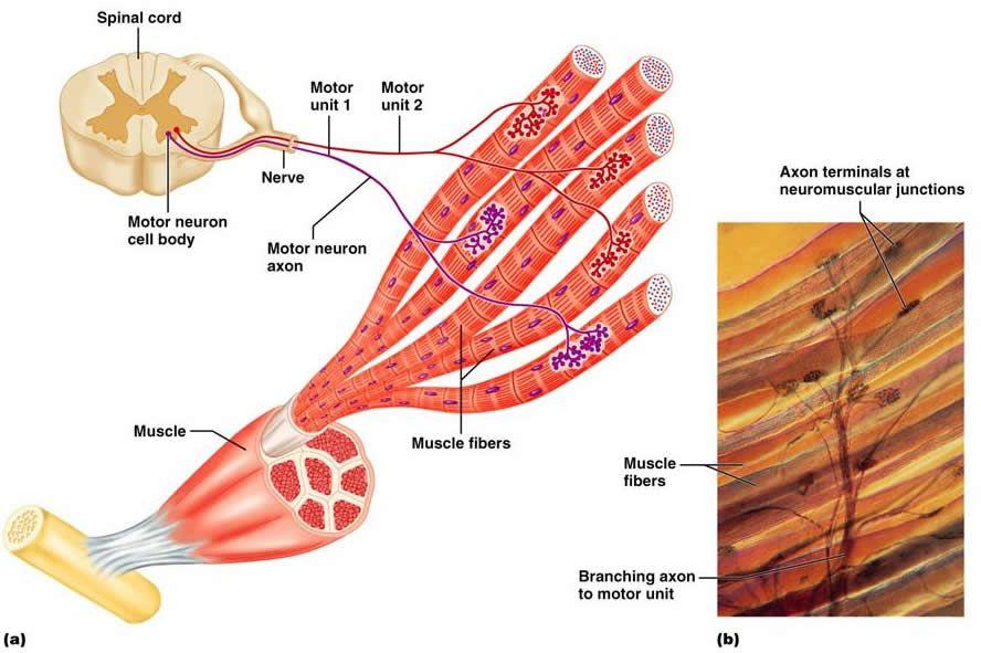 Slide26.jpg (888×591) | Systems: Musculoskeletal | Pinterest