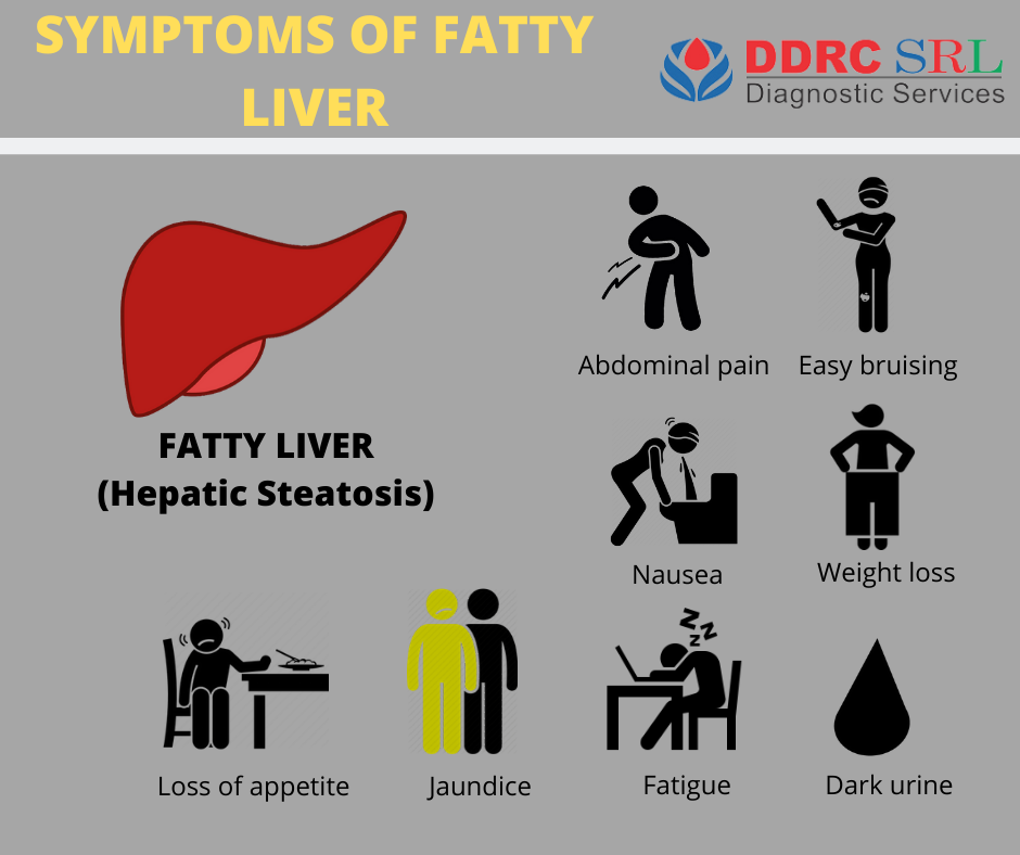 Know about the symptoms of fatty liver (Hepatic Steatosis