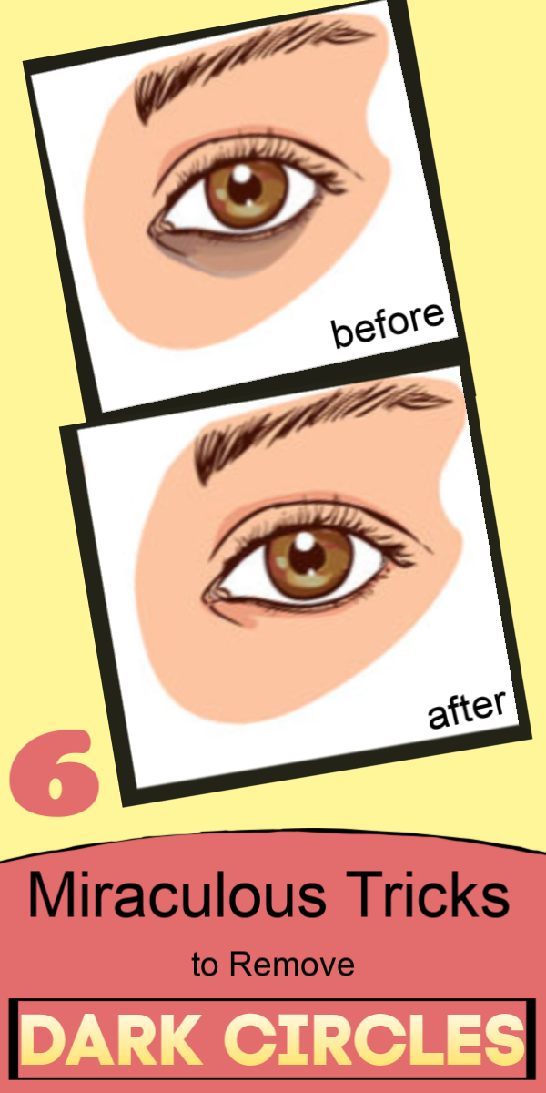 She removed her dark circles instantly with these miraculous tricks #darkcircle