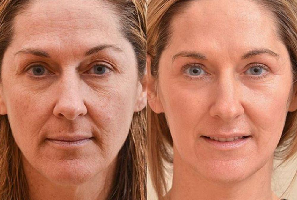 The Only Four Ways To Get Rid Of Fine Lines Around Your Eyes Laser Skin Laser Resurfacing Laser Rejuvenation