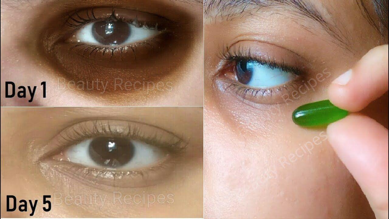 In 5 Days Remove Dark Circles Under Eye Wrinkles Eye Bags With Vitamin E Oil Serum Aloevera Gel Under Eye Wrinkles Eye Cream For Dark Circles Eye Wrinkle