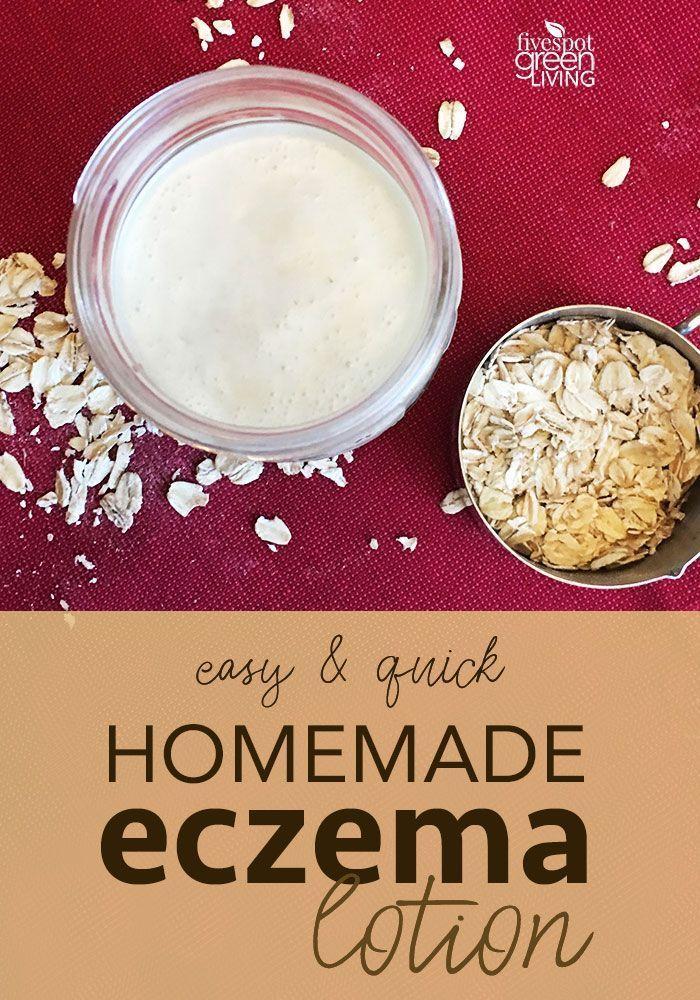 Homemade Eczema Cream Recipe for Dry Winter Skin