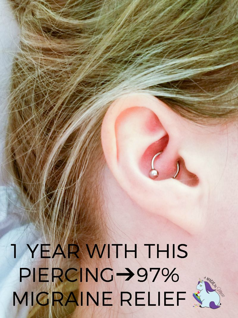 Migraine Piercing - 1 Year Results After Daith Piercing ...