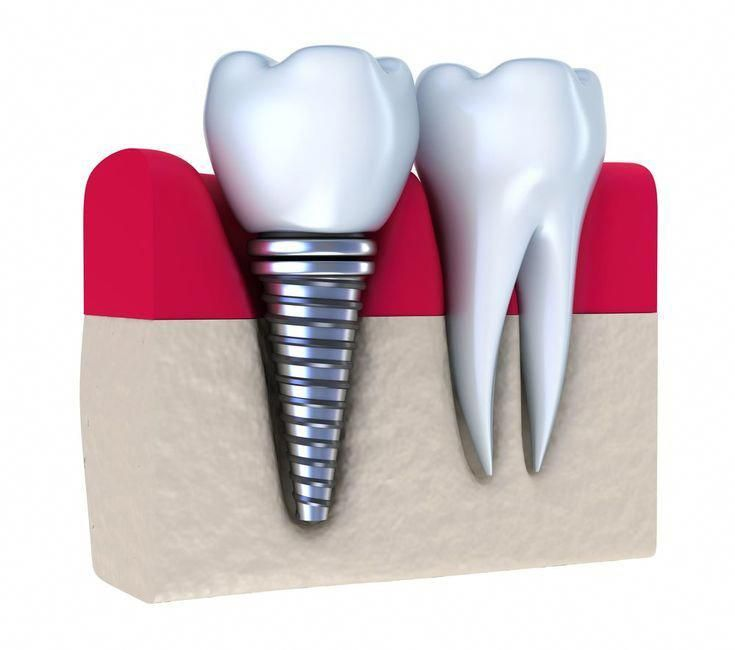 #Dental #Facts #Hygienist #oralhealthmattersNoxious #Tooth #toothimplant       #oralhealthmattersNoxious Dental Hygienist Facts #tooth #toothimplant #DentalHygienistCup #dentalfacts