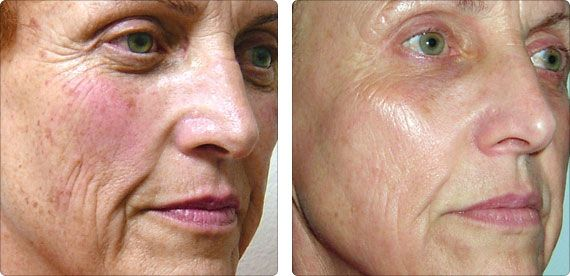 Before And After 3 360 Treatments 360 Includes 3 Clearlifts 3 Ipls And 3 Pixels This Is A Photo Fr Laser Skin Treatment Skin Treatments Skin Care Secrets