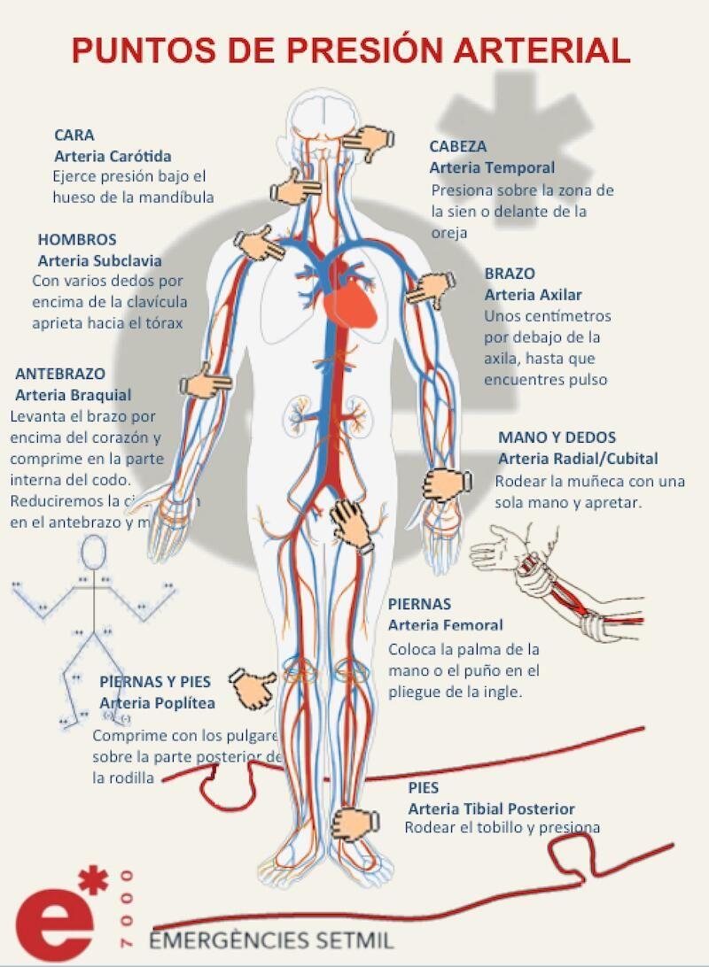 Puntos de presión arterial para parar una hemorragia | Comenzar a ...