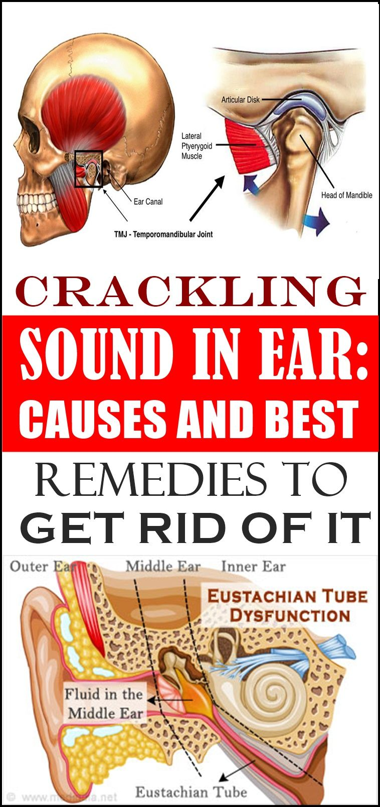 CRACKLING SOUND IN EAR CAUSES AND BEST REMEDIES TO GET