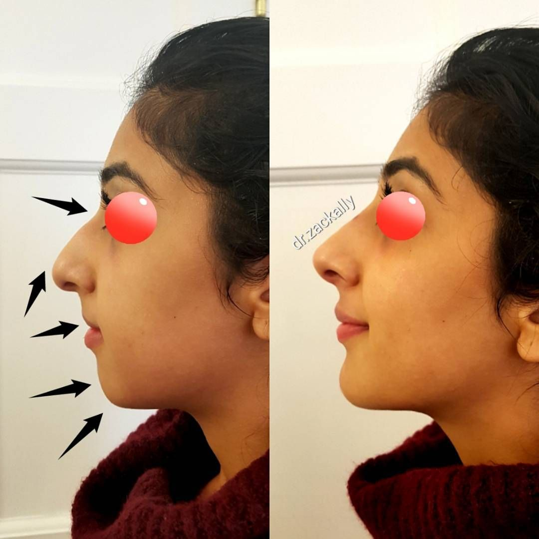Pin by Zaria Renee on chin augmentation | Aesthetic clinic