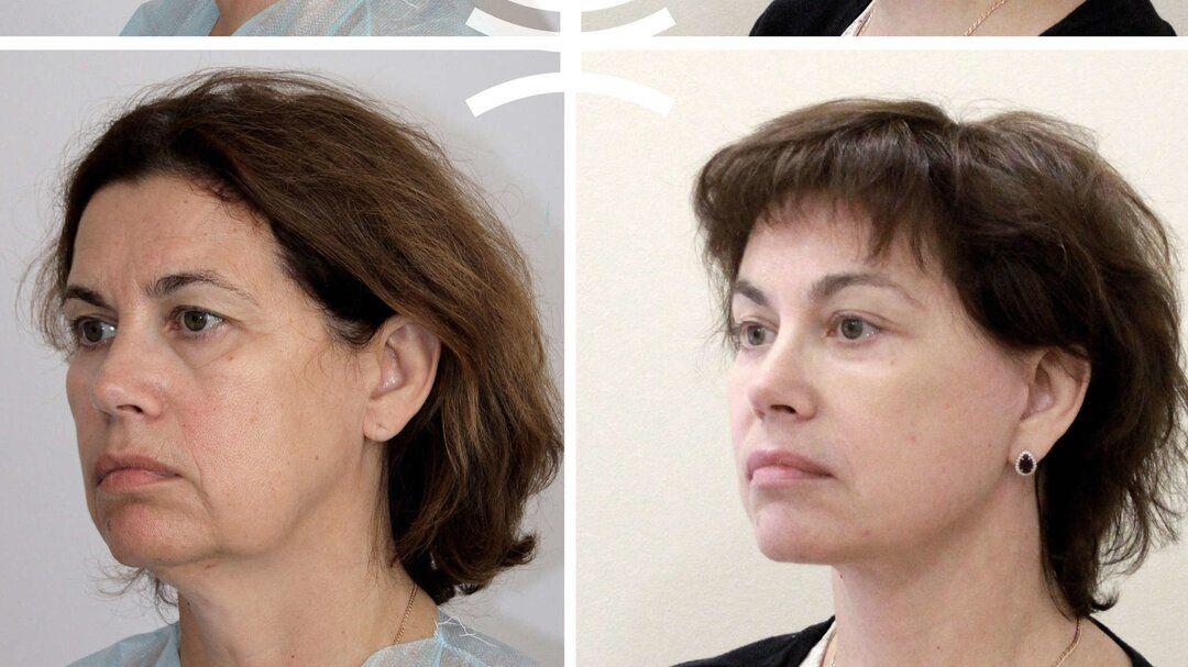 Массаж для похудения в щеках