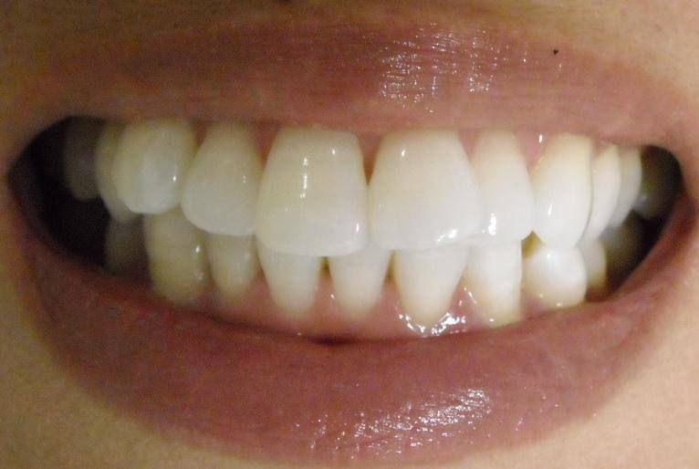 黄ばん だ 歯 を 白く する