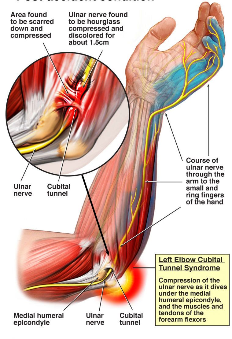 Here\'s a pic of how the nerves run through the shoulder down the arm ...