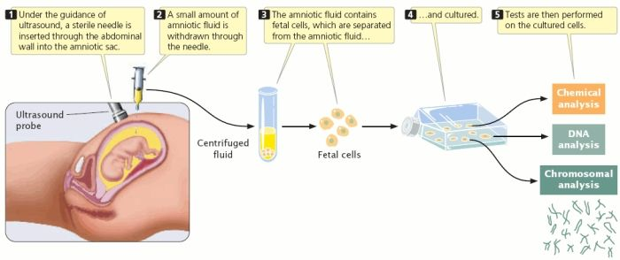 Prenatal Screening For Genetic Disorders Prenatal Screening