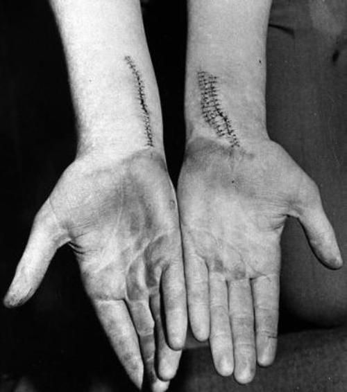 Stitched wrists from the suicide attempt of a young person.