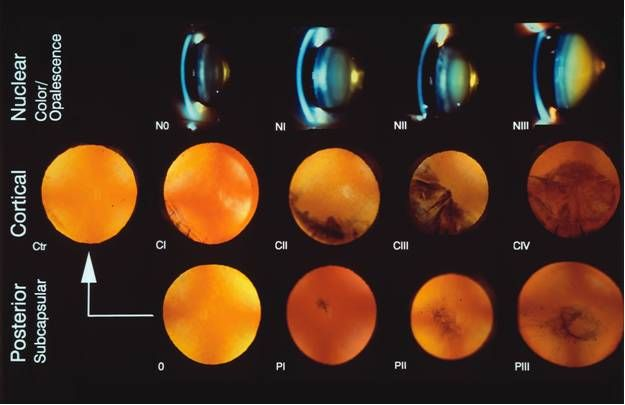 cataract grading scale for NS, cortical, PSC   Eyes