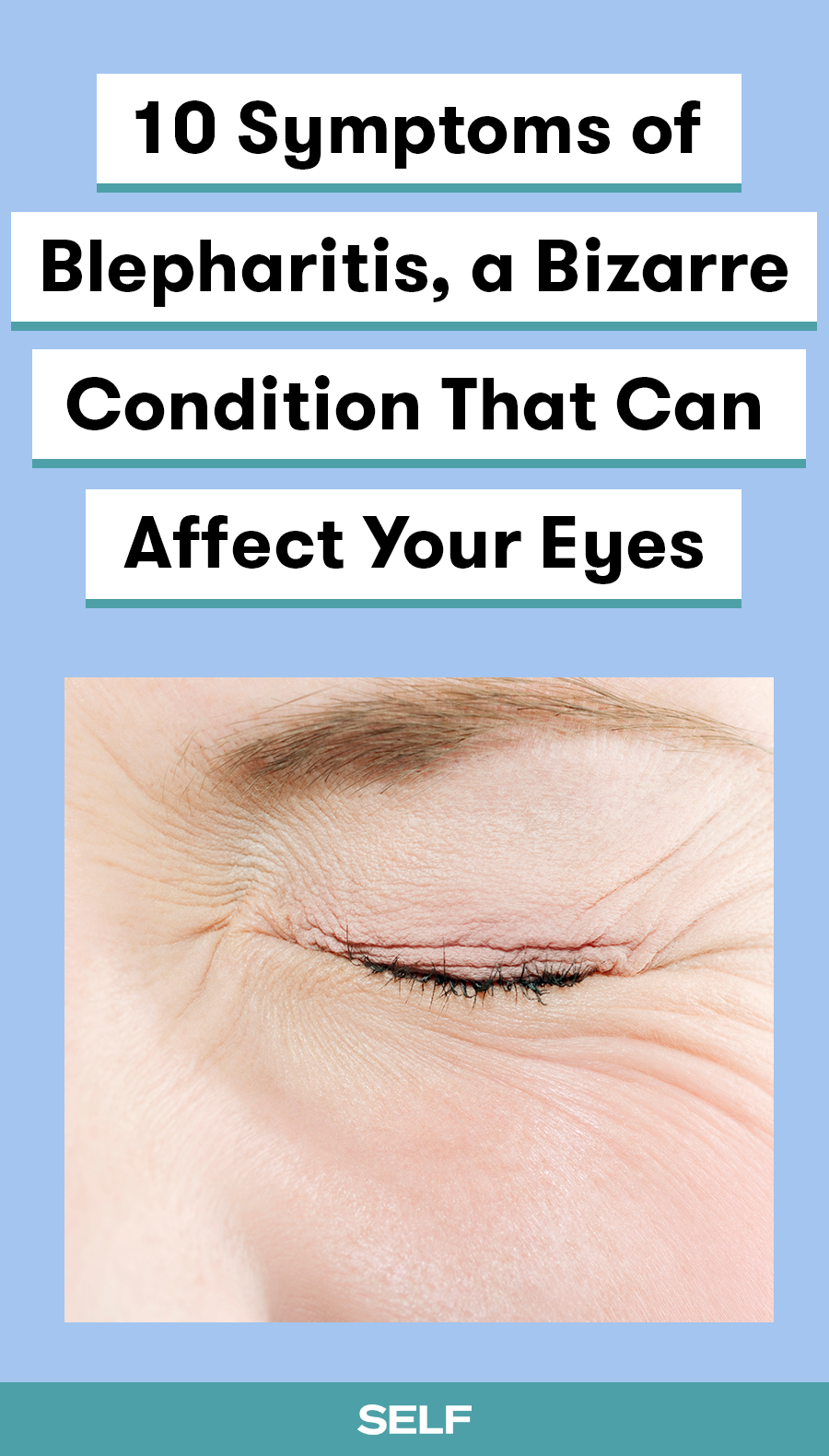 10 Symptoms Of Blepharitis A Bizarre Condition That Can Affect