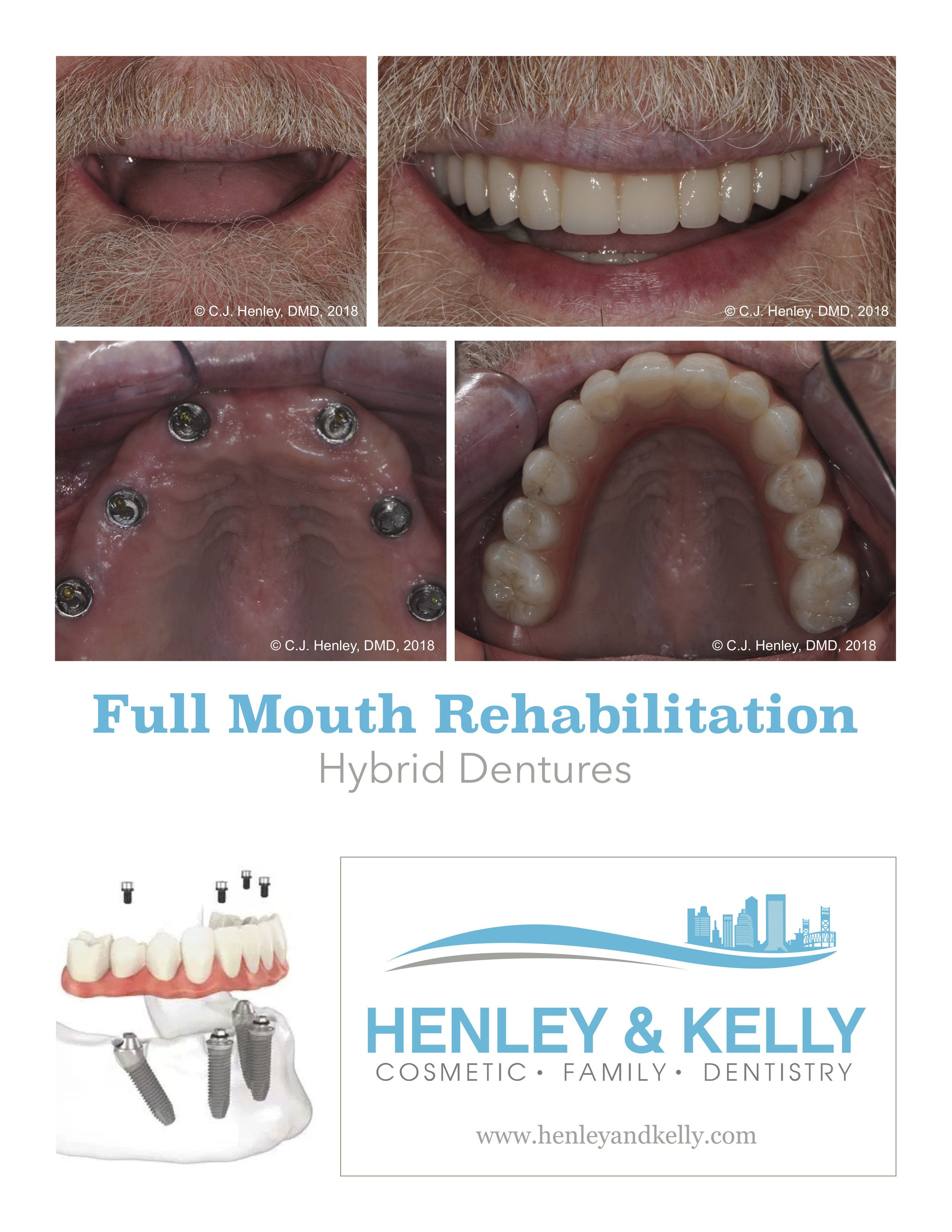 Simply Better DentistryCase of the Month: Screw Retained Dentures