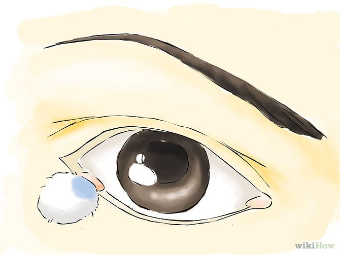how to get rid of a stye wikihow