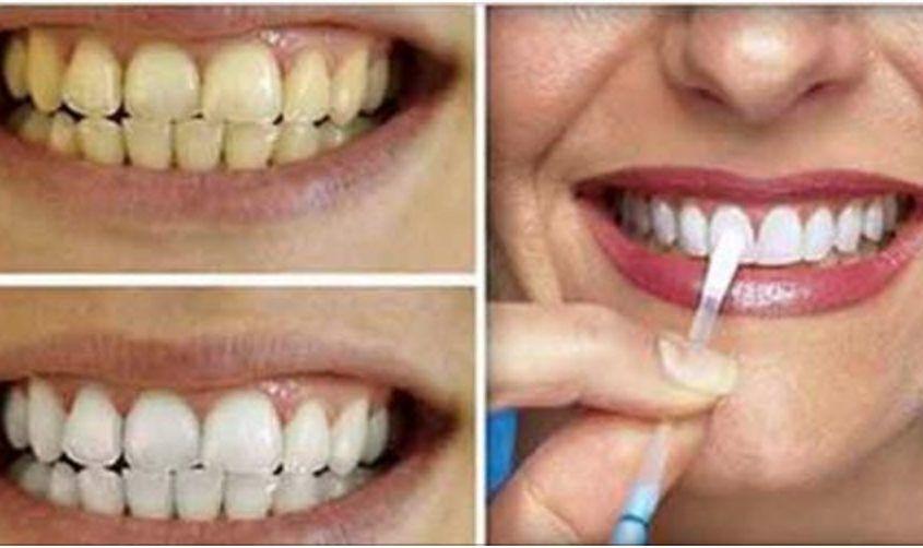 Thumb Esta E A Forma Mais Simples E Barata De Clarear Os Dentes Em