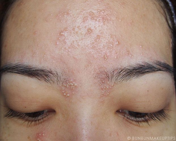 Allergic Reaction After Using Worse Makeup Products Pimples On