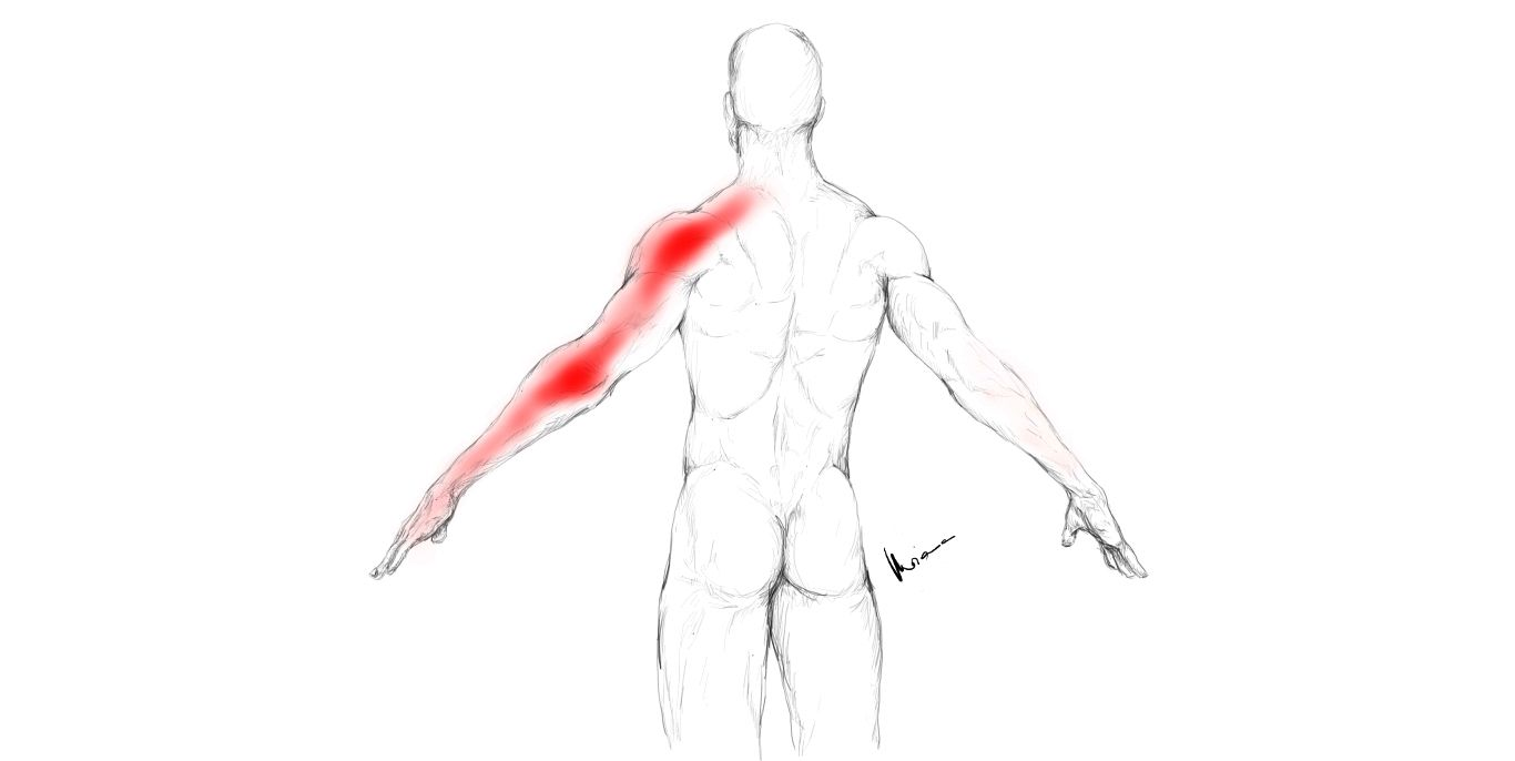 Triceps Brachii Muscle Pain And Trigger Points The Triceps Brachii