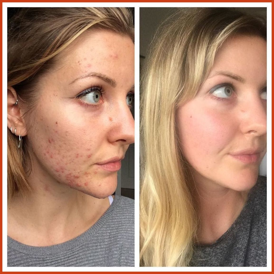 fc82c99c4eeb Acne Scar Removal - Laser Acne Scar Removal Treatments  Removes Serious  Scars   Read more details by clicking on the image.  CysticAcneTreatments    ...