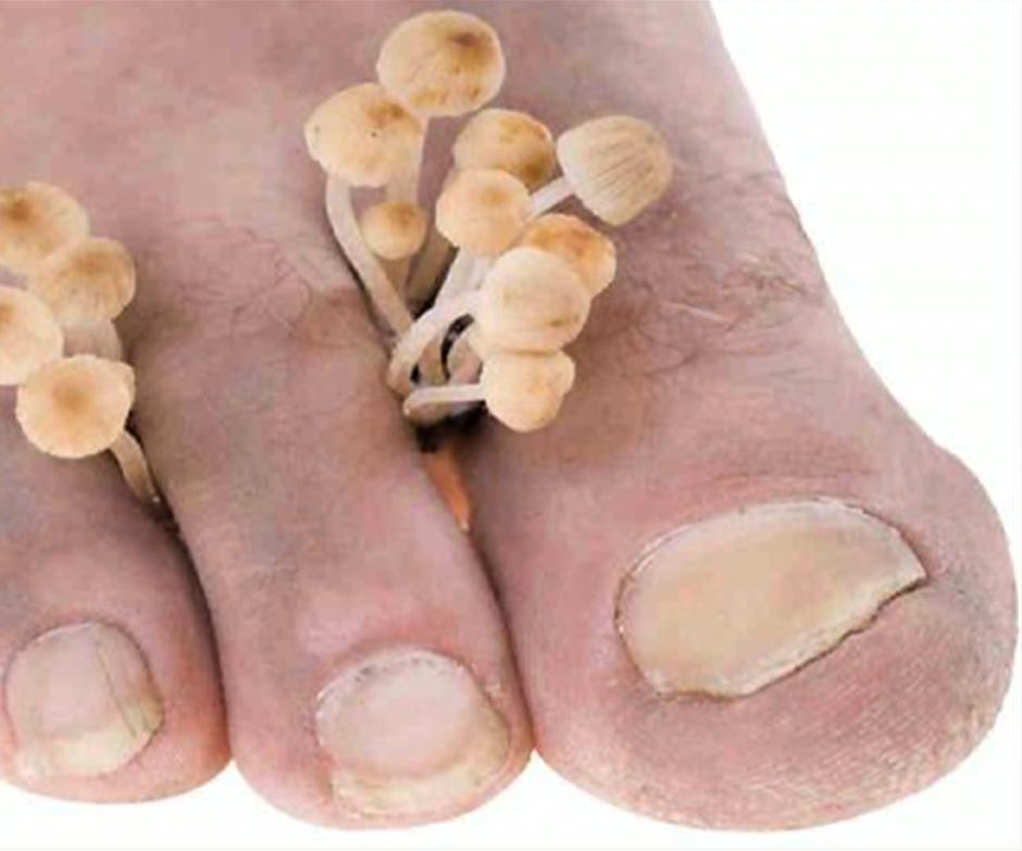 """Las enfermedades más comunes en los ancianos son las infecciones por hongos, como la tiña de pie y la tiña de uña u onicomicosis,para su cuidado, deberan  comenzar con  """"el lavado diario con agua tibia y jabón neutro, cortar las uñas rectas y secar bien los pies, sobre todo en los espacios interdigitales"""", y utilizar la crema de Unesia."""
